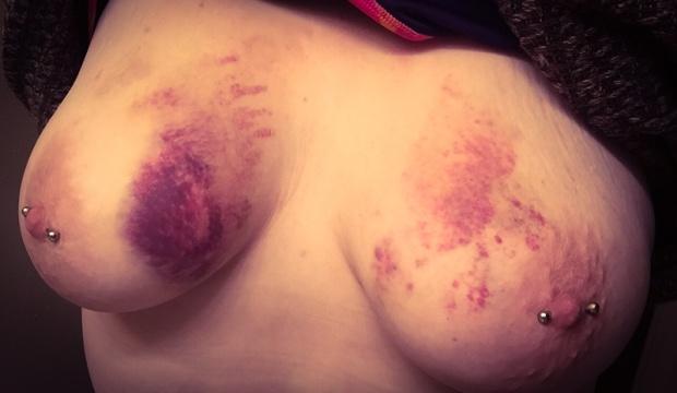Bruised.jpg